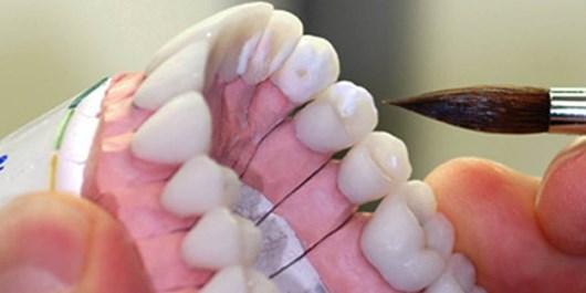 کارشکنی وزارت بهداشت در فرایند اجرای ساماندهی لابراتوار های پروتز دندانی در ایران